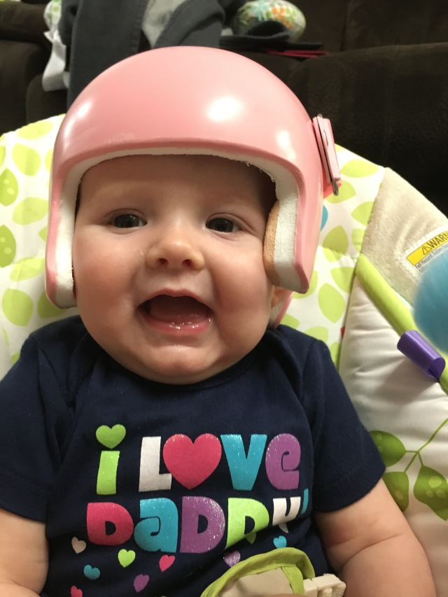 Plagiocephaly helmet day one