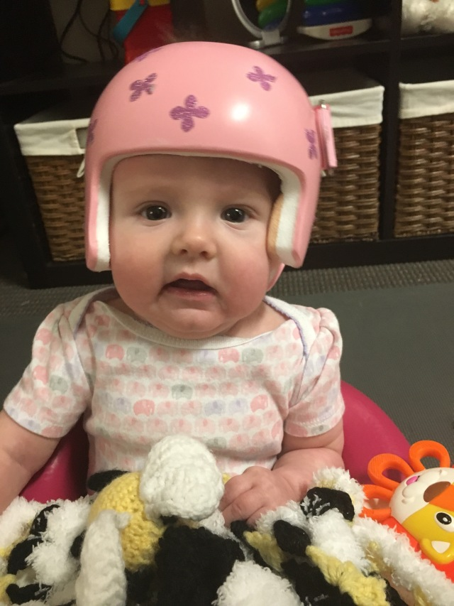 Plagiocephaly helmet with sparkly pink flowers