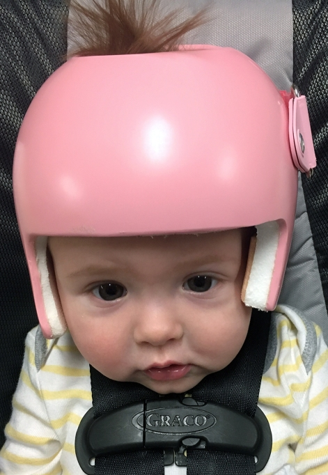 Madison in her baby plagiocephaly helmet