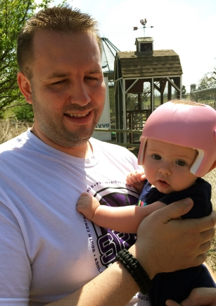plagiocephaly baby first trip to zoo with daddy